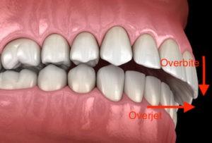 اورجت دندانی