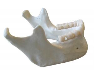 جابجایی دندان بعد از ارتودنسی