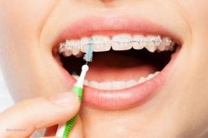 التهاب لثه در طول درمان ارتودنسی