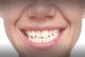 دلایل کج شدن دندان
